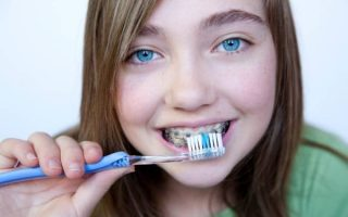 Looking after your teeth and gums during orthodontic treatment