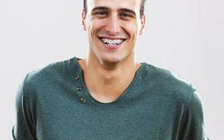 Norwest Orthodontics: your exclusive Damon Braces provider