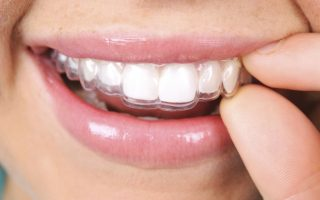 An insight into Invisalign