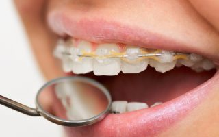 Braces for teenagers – the 101
