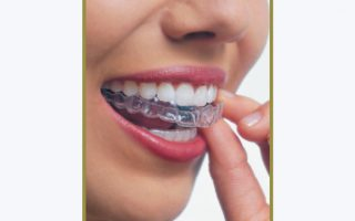 I want braces but I don't want anyone to know!