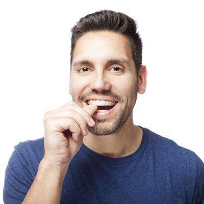 How long do I have to wear my retainers? | Norwest ...