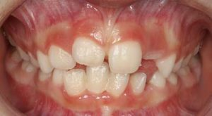 Early Intervention on Orthodontic Issues