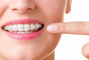 teeth and braces