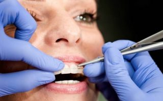 Which Are The Best Braces for Adults?
