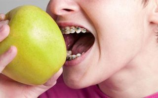 How will braces affect my child's everyday routine?