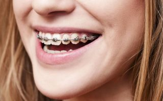 One size never fits all in orthodontic treatment