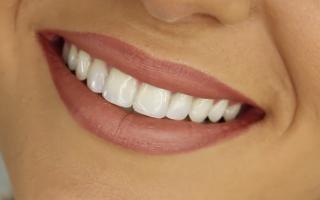 The history of orthodontics