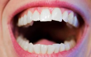 Do I need teeth removed due to crowding?