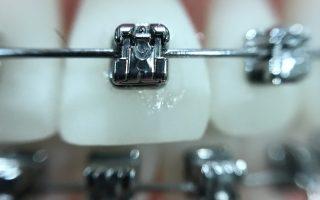 Why we use Damon braces
